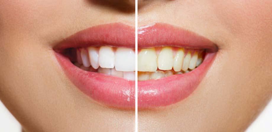 پاکسازی عمیق دندان ها با مسواک Self Reliance